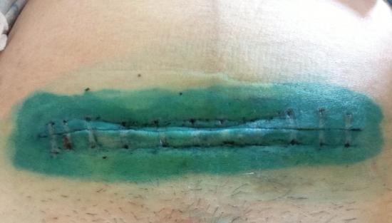 Лигатурный свищ послеоперационного рубца: что это, как выглядит после кесарева, почему образуется, сколько заживает, лечение