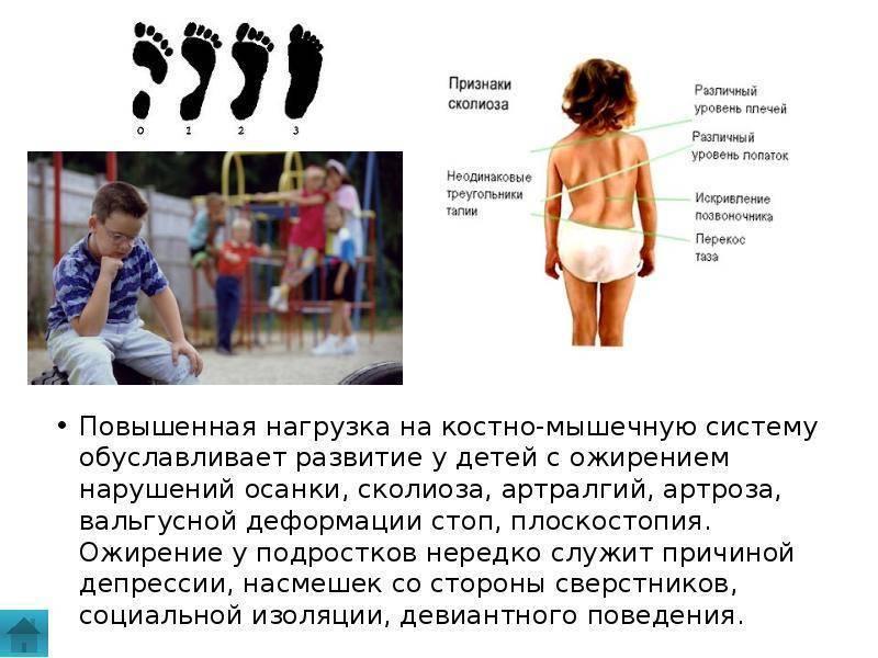 Ожирение у детей почему оно развивается и какие есть стадии патологии?