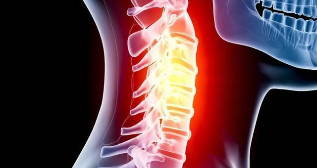 Нестабильность шейных позвонков у детей лечение | спина доктор
