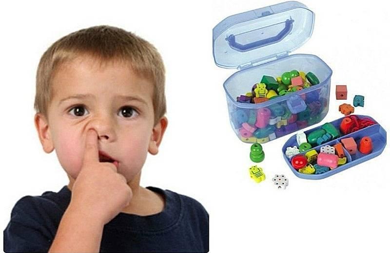 Ребенок засунул в нос бусинку: что делать с инородным телом, как его вытащить?
