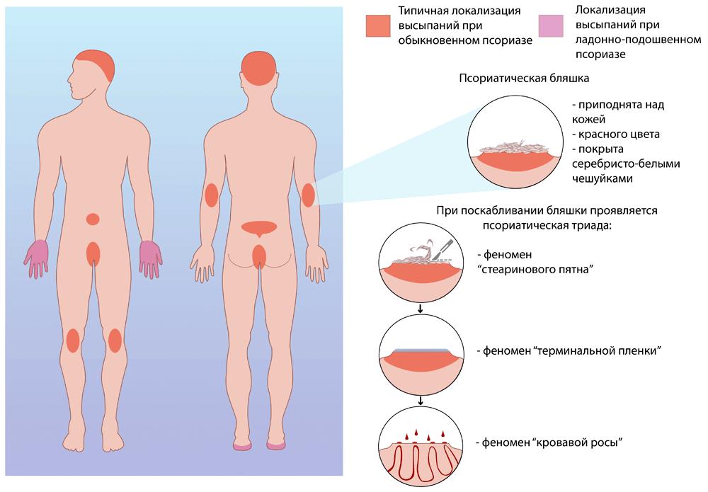 Фурункул у ребенка: комаровский о причинах и лечении фурункулеза у детей
