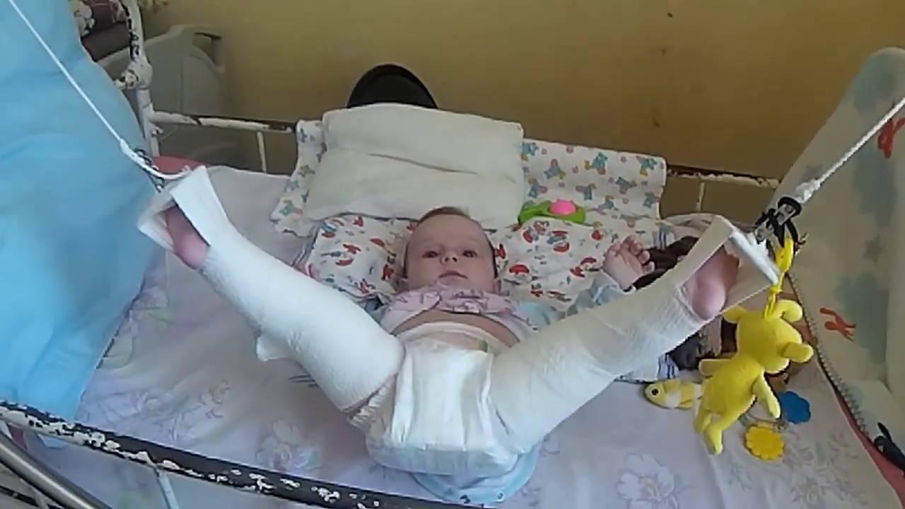 Дисплазия тазобедренных суставов у новорожденных стремена