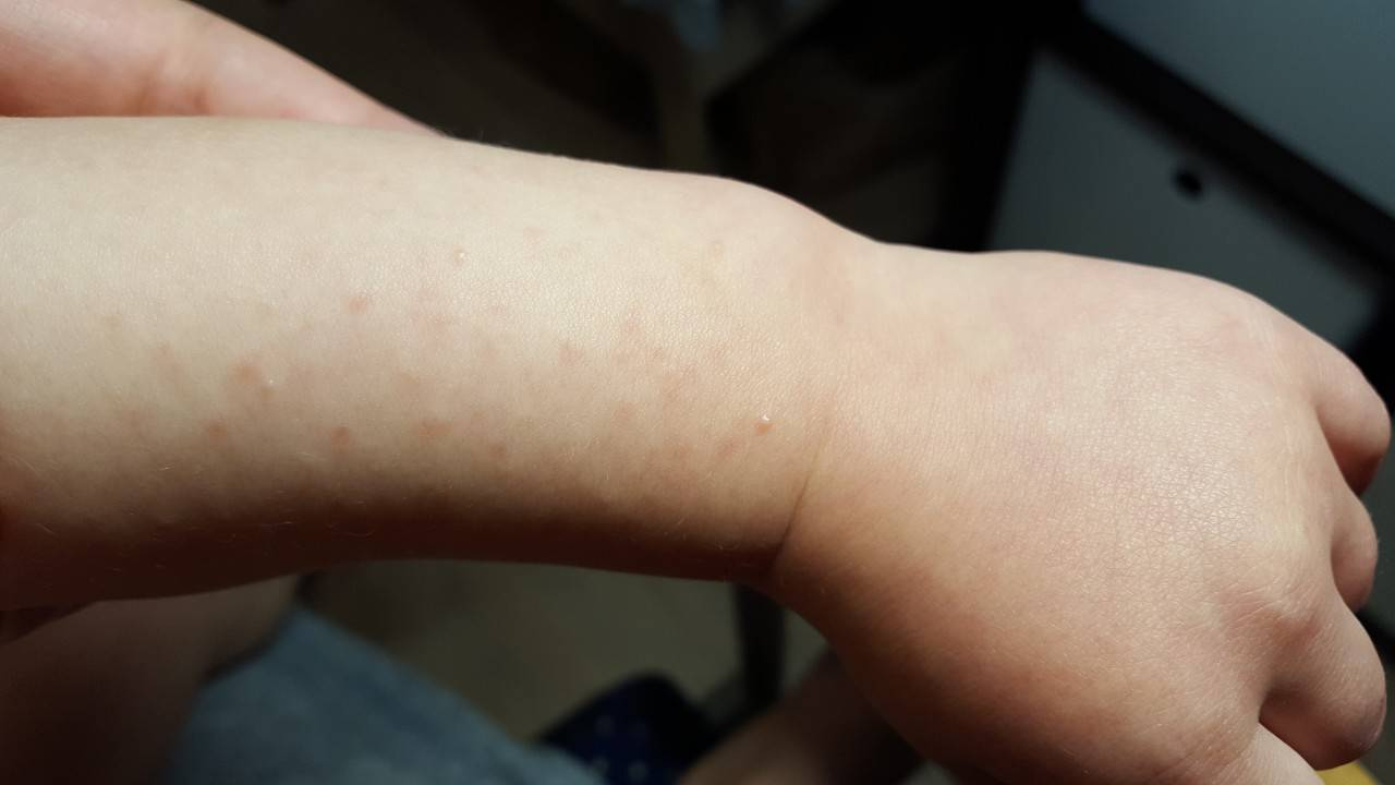 Сыпь на теле у ребенка. фото с пояснениями в виде прыщиков, мелкая, чешется, красная, без температуры, зуд, аллергическая. как лечить, что это может быть