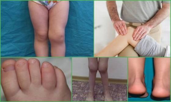 Реактивный артрит тазобедренного сустава у детей: особенности, симптомы и лечение