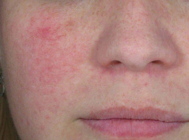 Сухая кожа при беременности, причины шелушения и покраснения во время вынашивания ребенка - детская клиническая больница г. улан-удэ