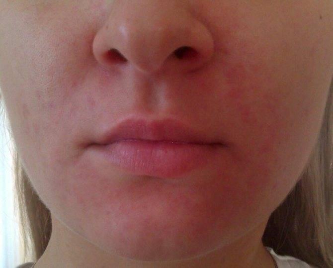Пероральный дерматит на лице: фото, лечение кремами, мазями, народные средства