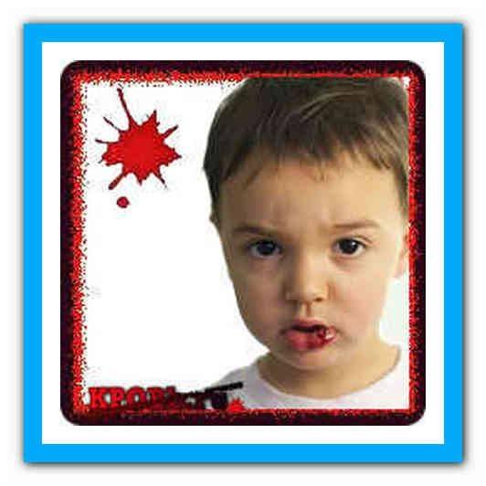 Ребенок разбил губу: что делать, первая помощь при травме