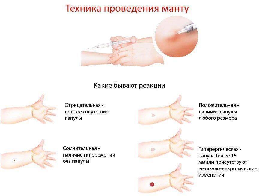 Реакция манту у детей: норма размеров по возрасту в 1-3 года с фото | прививки | vpolozhenii.com