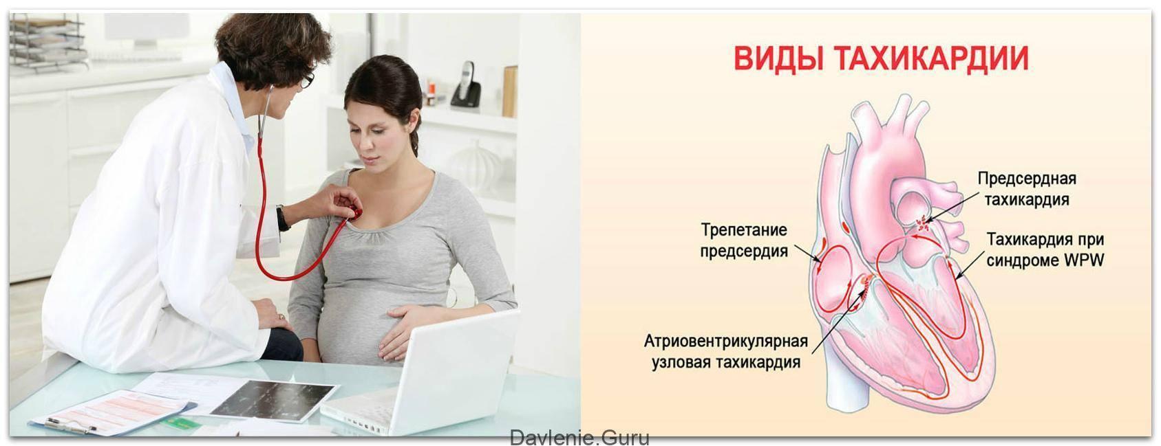 Высокое давление при беременности на ранних и поздних сроках - причины и лечение