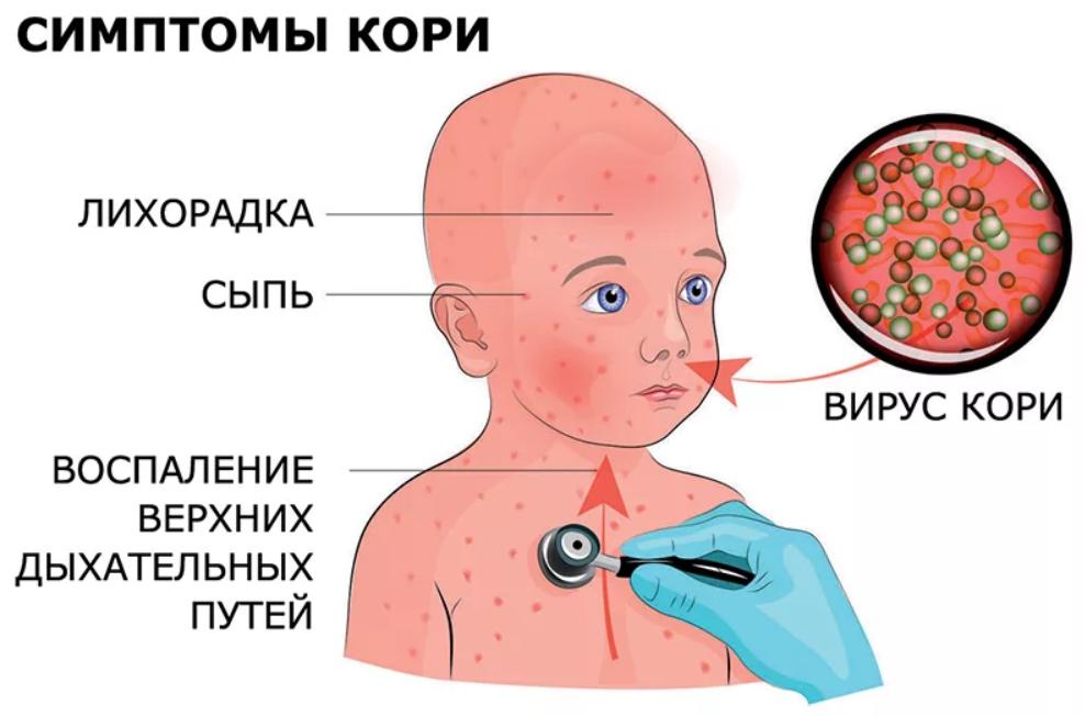 Высыпания на коже, вызванные вирусами герпеса