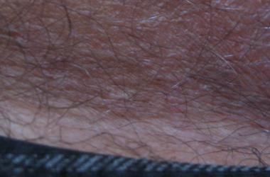 Зуд и раздражение в паховой области у мужчин - причины возникновения и лечение