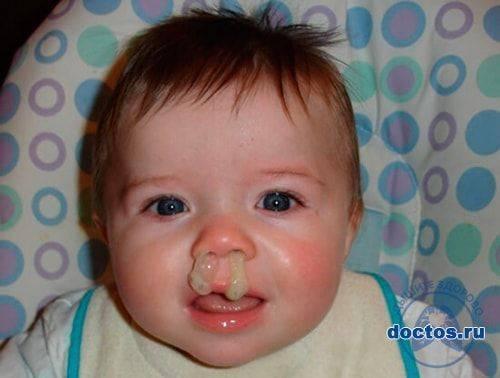 Почему ребенок шмыгает носом а соплей нет - лор-заболевания