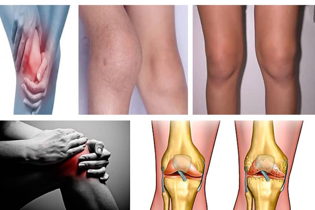 Артрит коленного сустава у детей: причины, симптомы, лечение