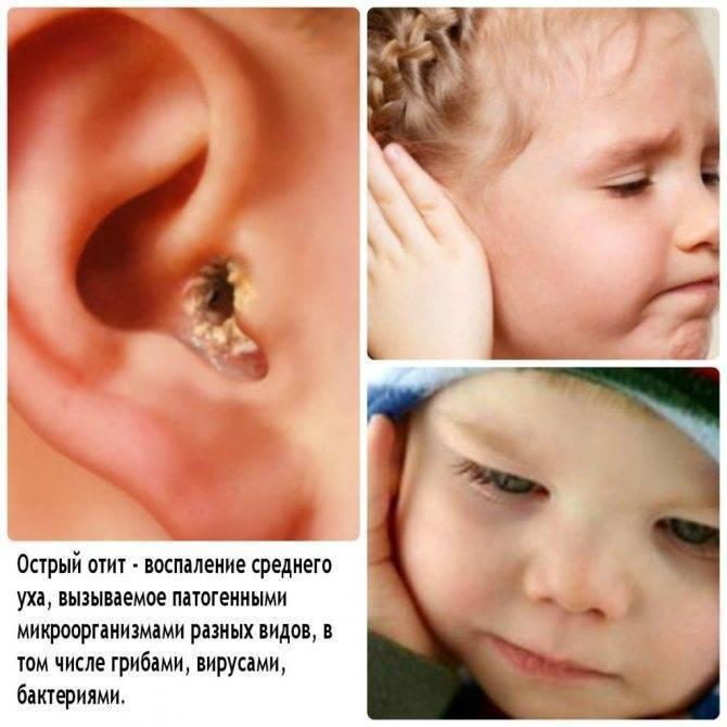 Комаровский: симптомы и лечение острого среднего катарального отита у детей