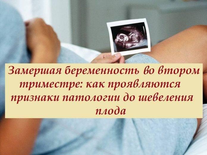 Замершая беременность: признаки и симптомы на раннем и позднем сроке