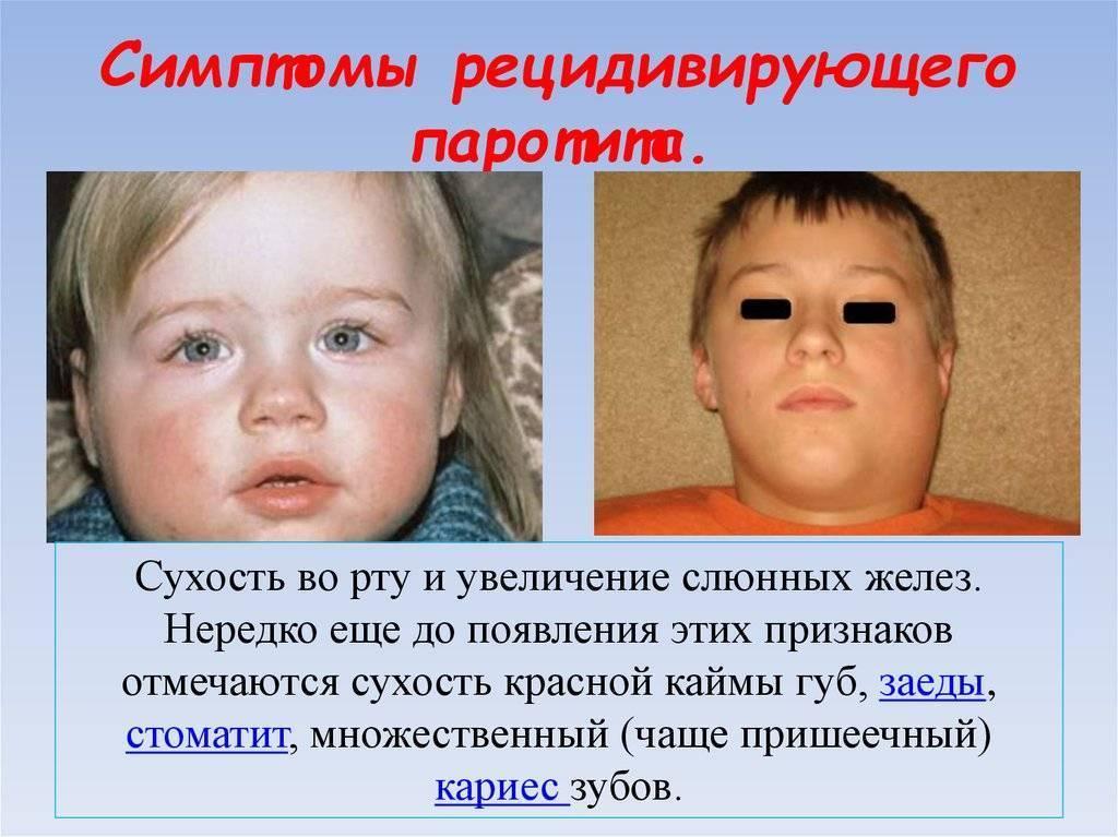 Лимфаденит у детей: главные причины заболевания и обзор методов лечения