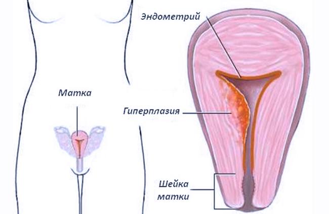 Очаговая гиперплазия эндометрия и беременность, ответы врачей, консультация