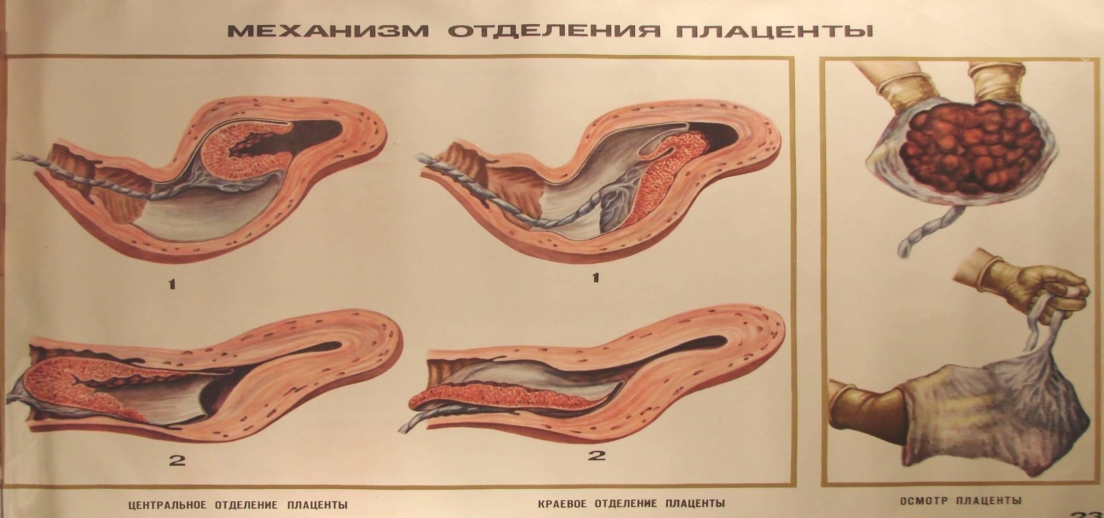 Кровянистые выделения после родов, через месяц после родов