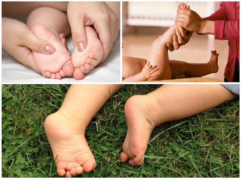 Признаки косолапости у детей с фото, методы лечения с помощью упражнений, массажа и обуви. лечебный детский массаж от косолапия
