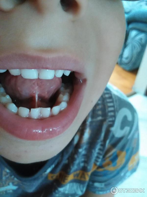 Почему подрезают уздечку под языком. в каком возрасте и как делают подрезание уздечки языка у детей