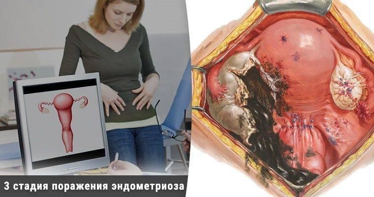 Эндометриоидная киста яичника и беременность…