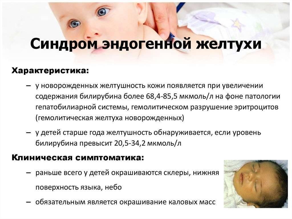 Транзиторная желтуха новорожденных: причины и лечение