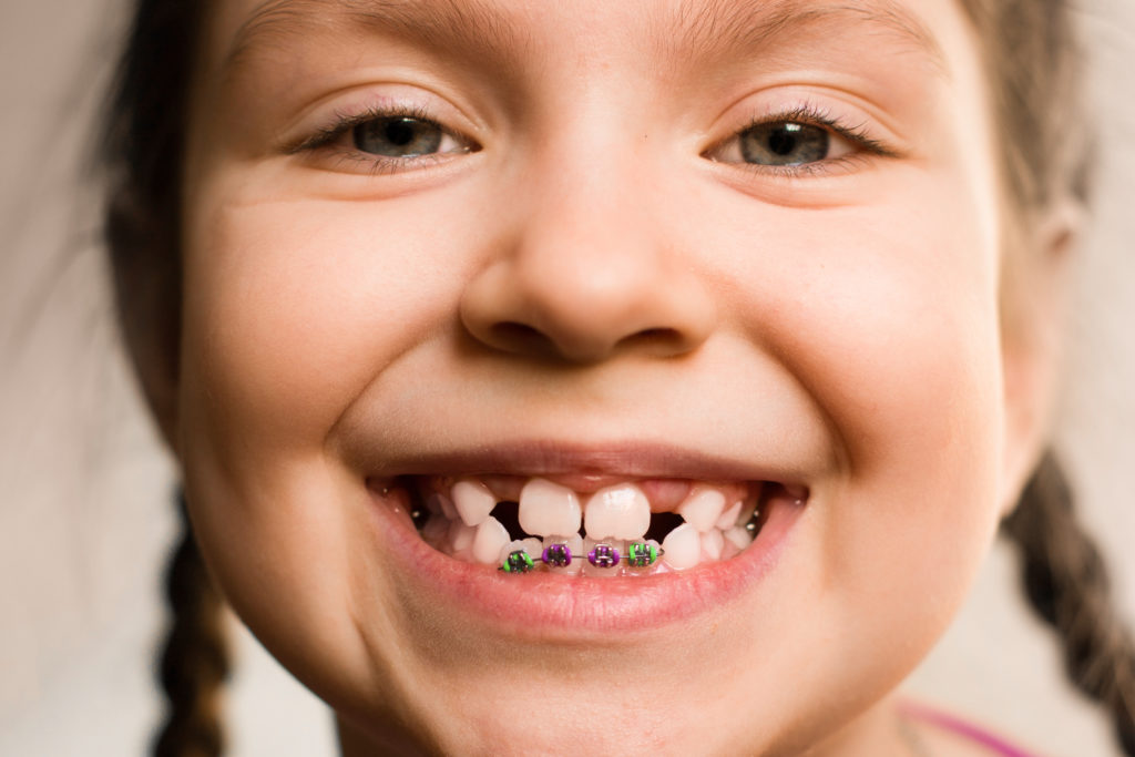Брекеты для детей — как и когда лучше ставить конструкции?