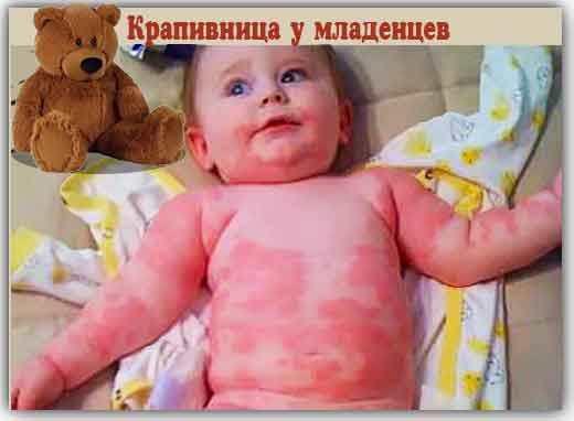 Крапивница у детей симптомы и лечение фото первые признаки. причины
