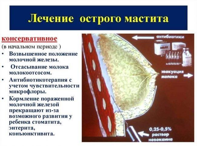 Мастит у некормящей, симптомы, лечение мастита у некормящих женщин