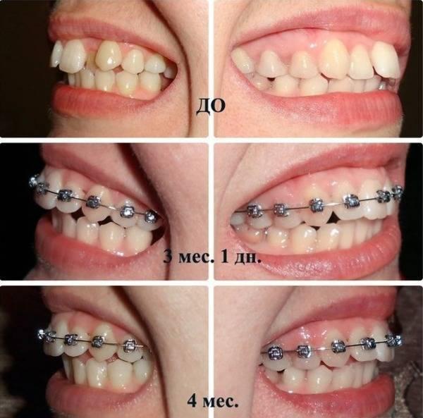 Курс к ровным зубам: когда и как ставят брекеты детям?