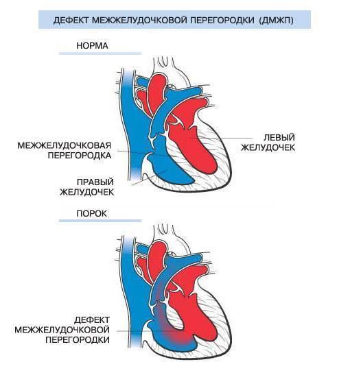Порок сердца у новорожденных детей: причины впс, последствия и признаки, операция