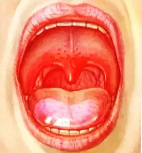 Чем лечить температура у ребенка и язвочки в горле