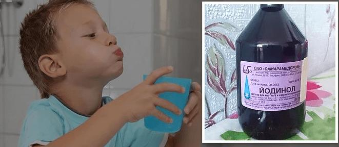 Ангина у детей: как лечить больное горло, чем полоскать и какие антибиотики эффективны против ангины
