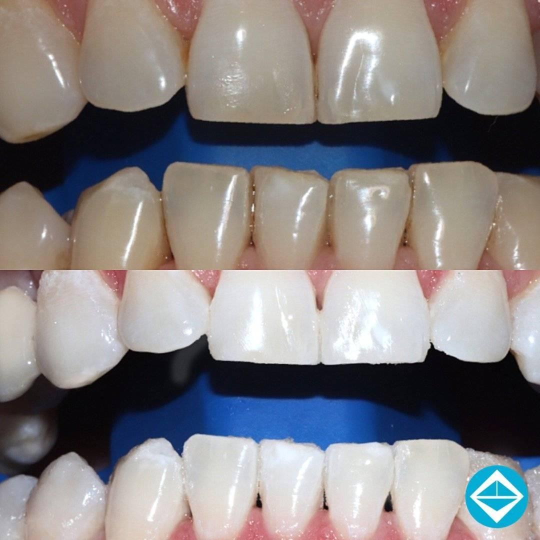 Фторирование зубов у детей - что это такое: фото до и после, мнение комаровского | spacream.ru