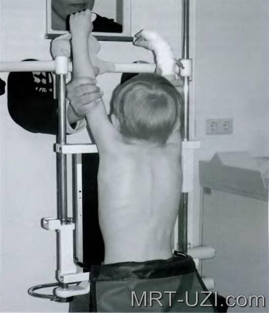 Как часто можно делать рентген взрослому и сколько снимков можно сделать за раз