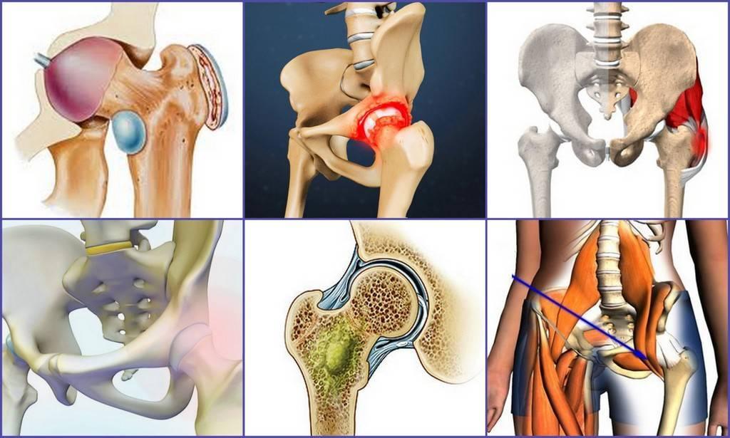 Симптомы и лечение артрита тазобедренного сустава у детей