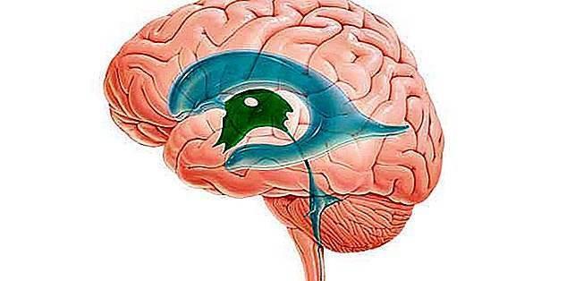 Расширение боковых желудочков головного мозга у ребенка лечение - все о детях