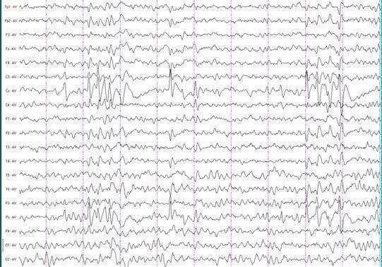 Роландическая эпилепсия: симптоматика заболевания, статистика регресса в период взросления