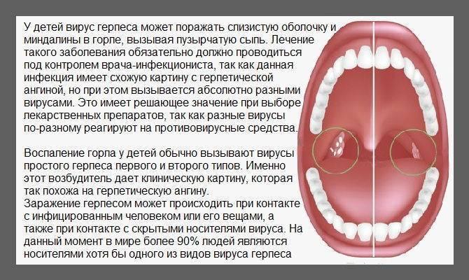 Как выявить и чем лечить герпесный стоматит у детей