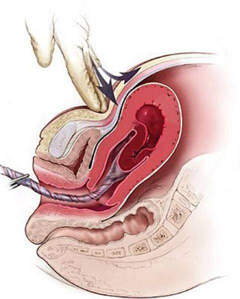 Сгустки в матке после родов – норма или патология?