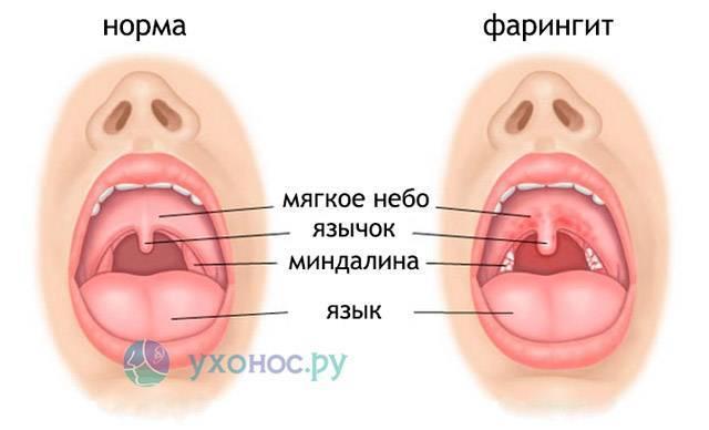 Рыхлое горло лечение. красное рыхлое горло у ребенка комаровский