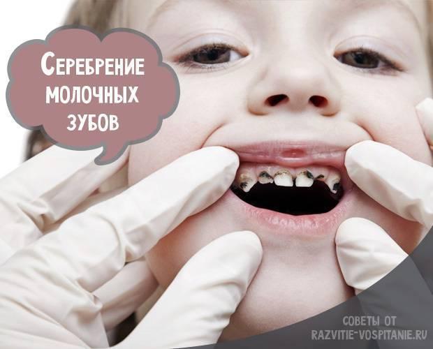 Как делается серебрение зубов у детей при кариесе