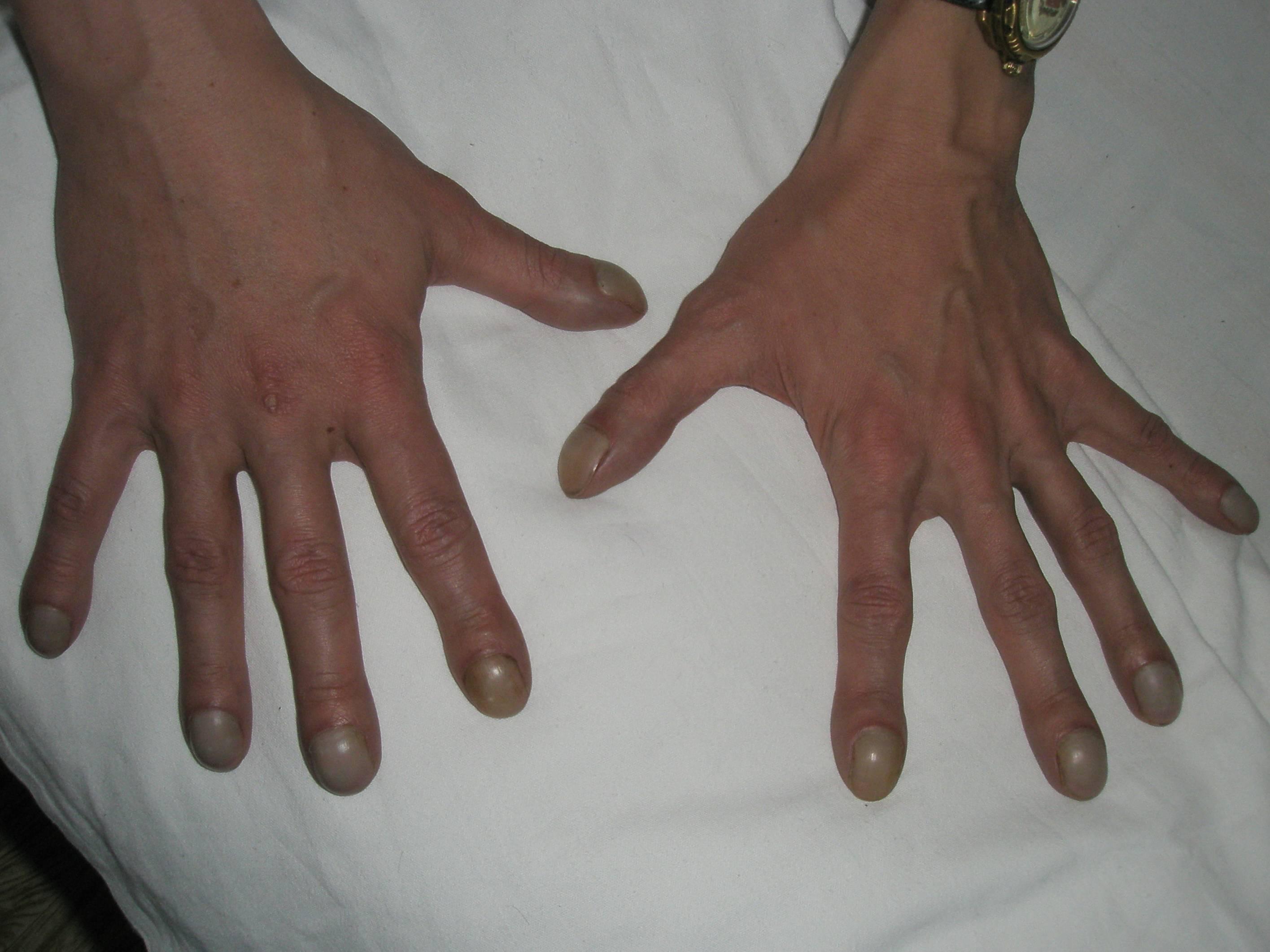 У ребенка не разгибается большой палец на руке лечение