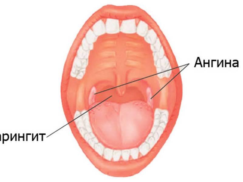 Признаки катаральной ангины у детей