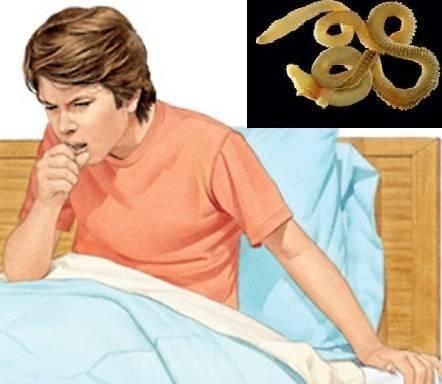 Признаки и лечение кашля при глистной инвазии