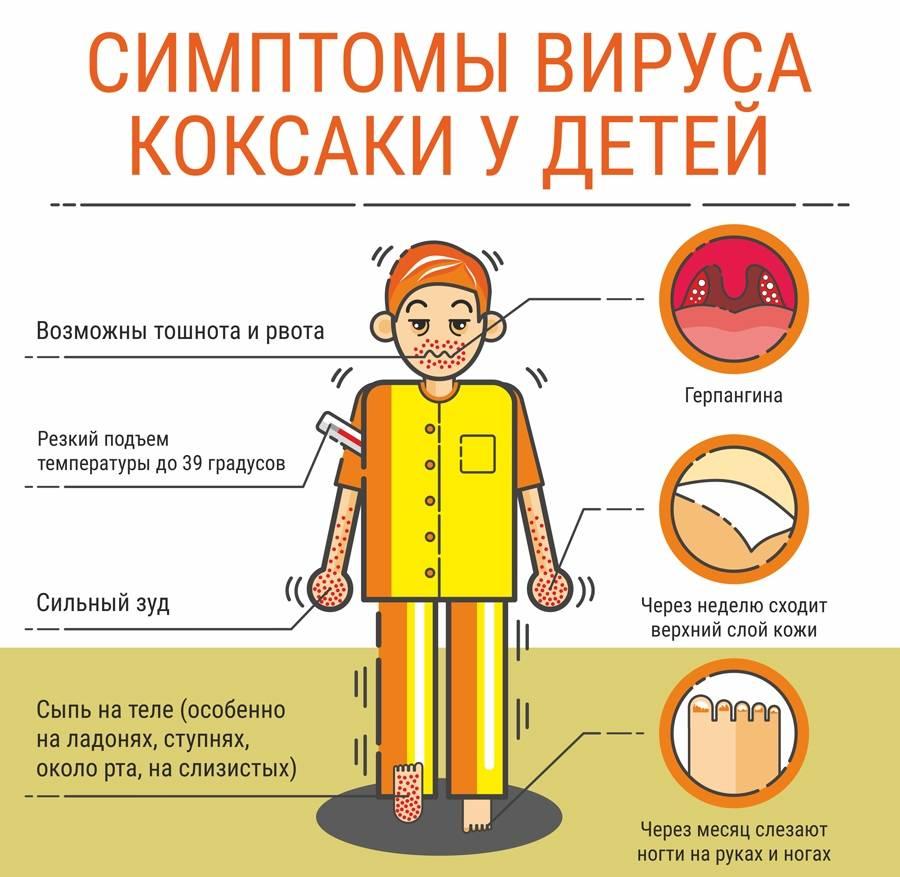 Вирус Коксаки у детей: фото, симптомы в инкубационный период, лечение