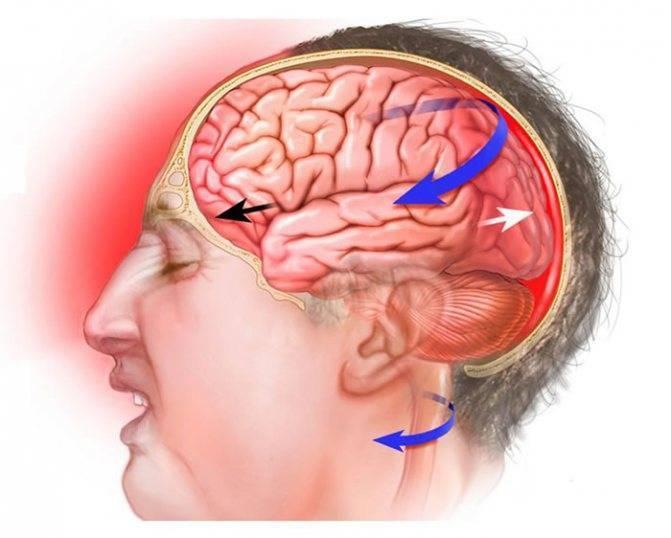 Особенности лечения черепно-мозговых травм
