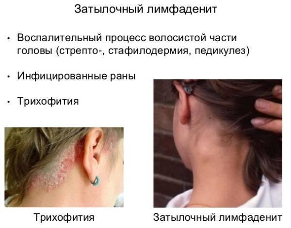 Увеличен лимфоузел на шее у ребенка с одной стороны: причины