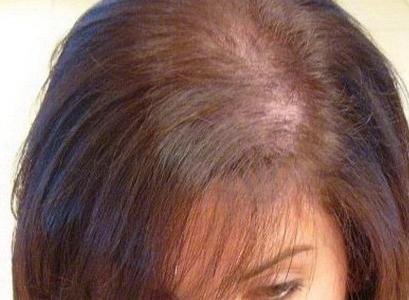 Почему у ребенка выпадают волосы и лечение детской алопеции
