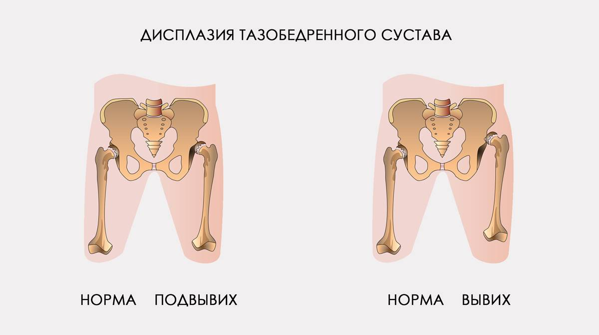 Дисплазия тазобедренных суставов у детей до и после года, симптомы, признаки и лечение